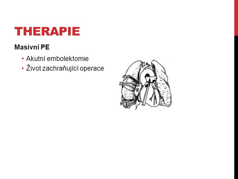 Therapie Masivní PE Akutní embolektomie Život zachraňující operace