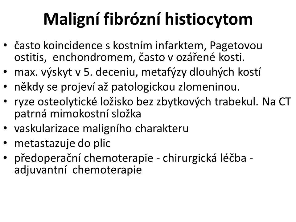 Maligní fibrózní histiocytom
