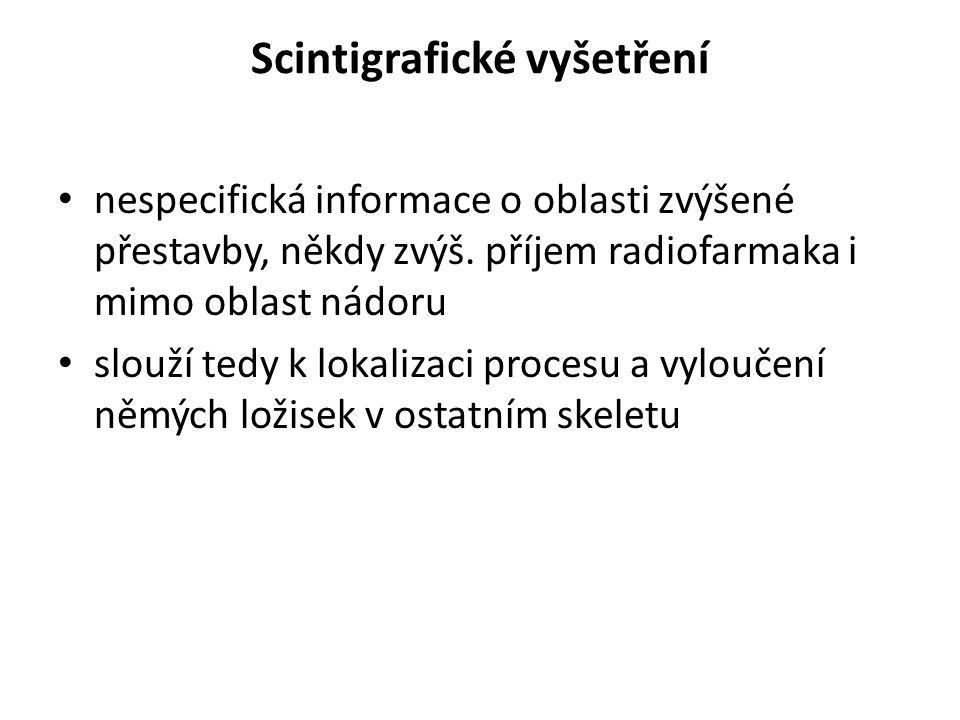 Scintigrafické vyšetření