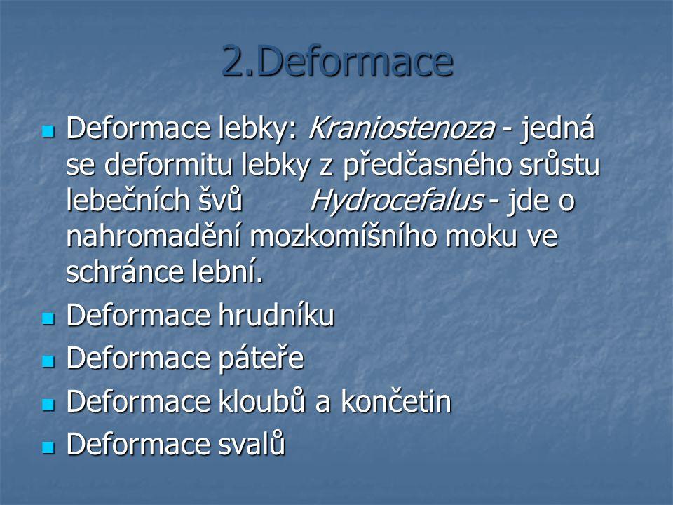 2.Deformace