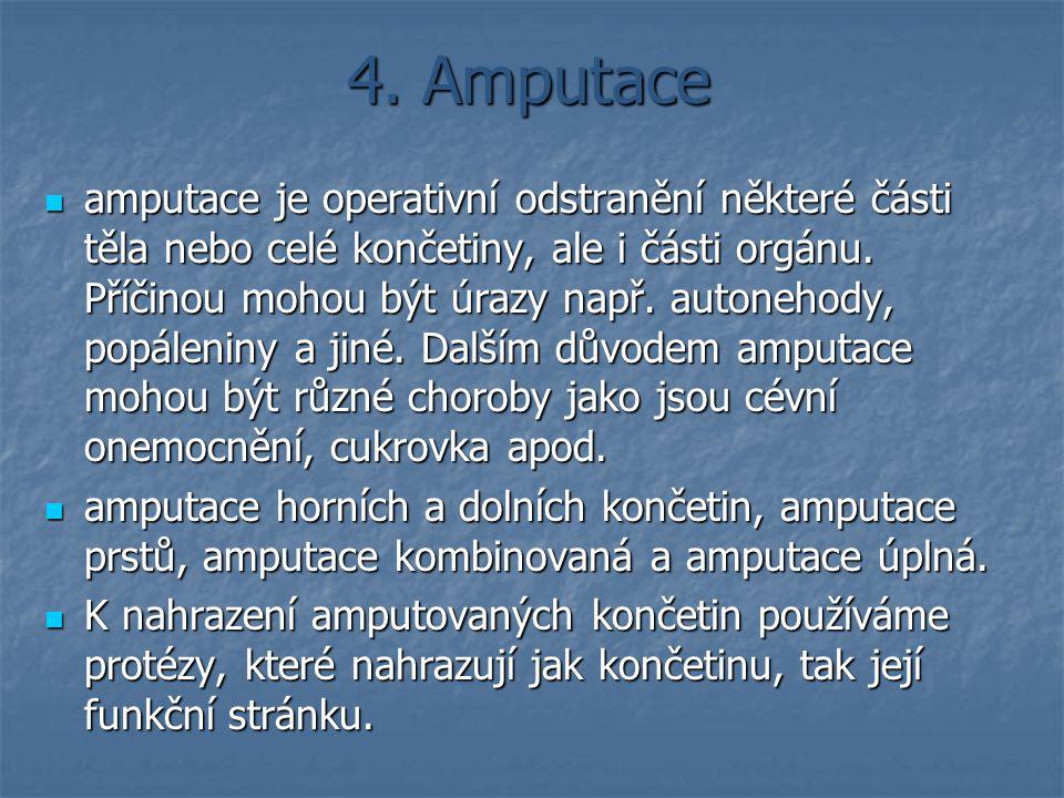 4. Amputace