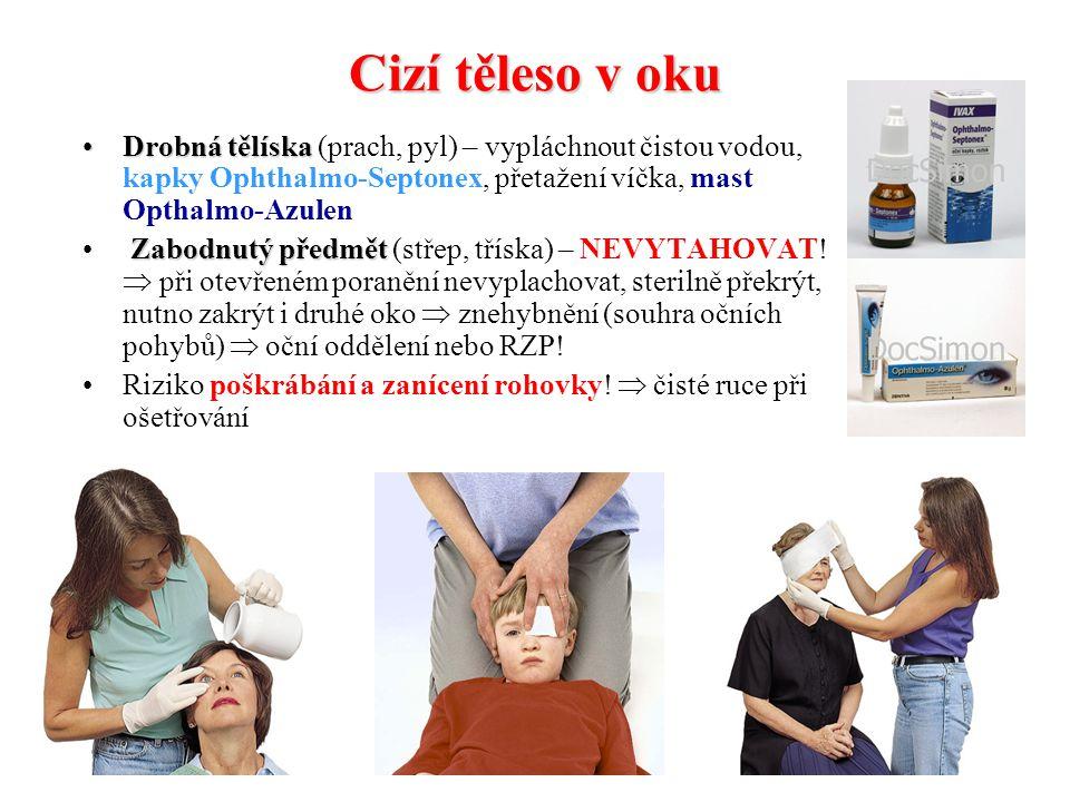 Cizí těleso v oku Drobná tělíska (prach, pyl) – vypláchnout čistou vodou, kapky Ophthalmo-Septonex, přetažení víčka, mast Opthalmo-Azulen.