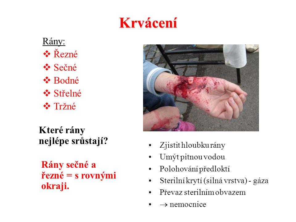 Krvácení Rány: Řezné Sečné Bodné Střelné Tržné
