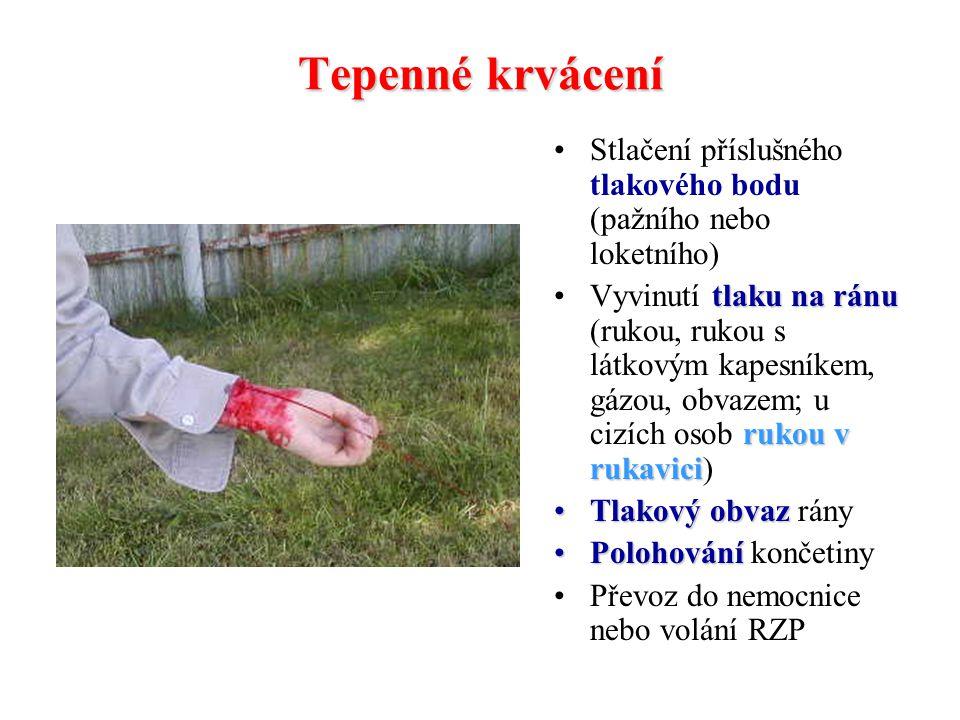 Tepenné krvácení Stlačení příslušného tlakového bodu (pažního nebo loketního)