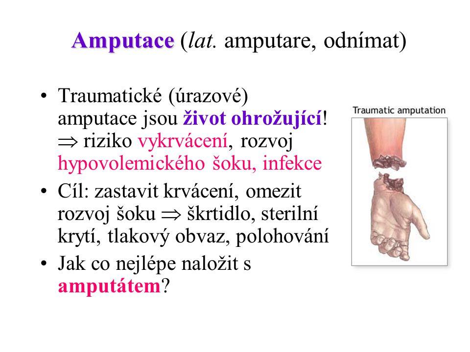 Amputace (lat. amputare, odnímat)