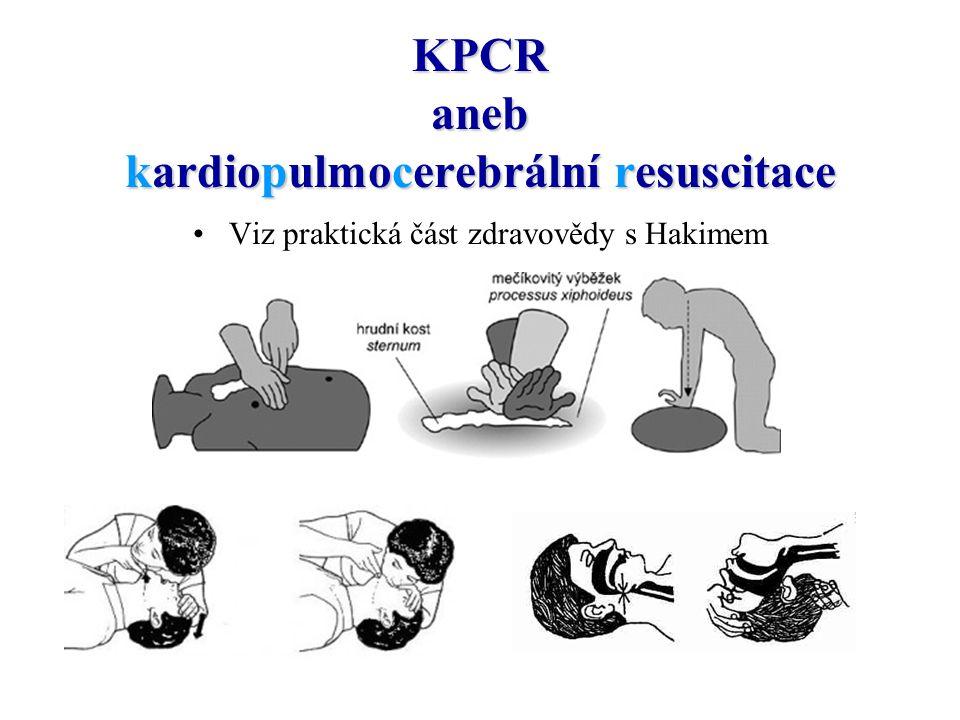 KPCR aneb kardiopulmocerebrální resuscitace