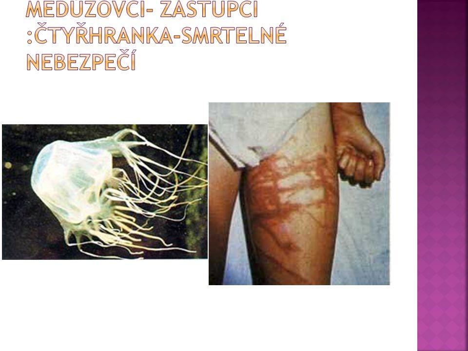 Medúzovci- zástupci :čtyřhranka-smrtelné nebezpečí