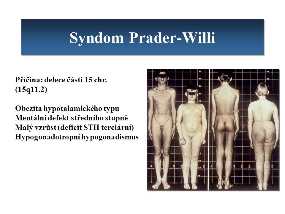 Syndom Prader-Willi Příčina: delece části 15 chr. (15q11.2)