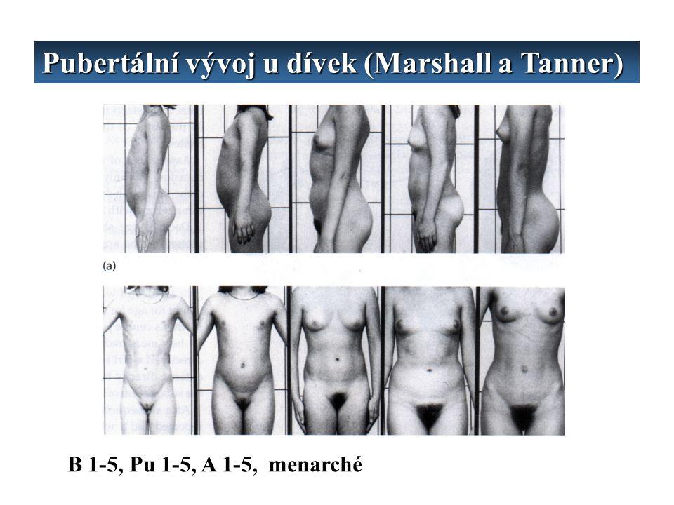 Pubertální vývoj u dívek (Marshall a Tanner)