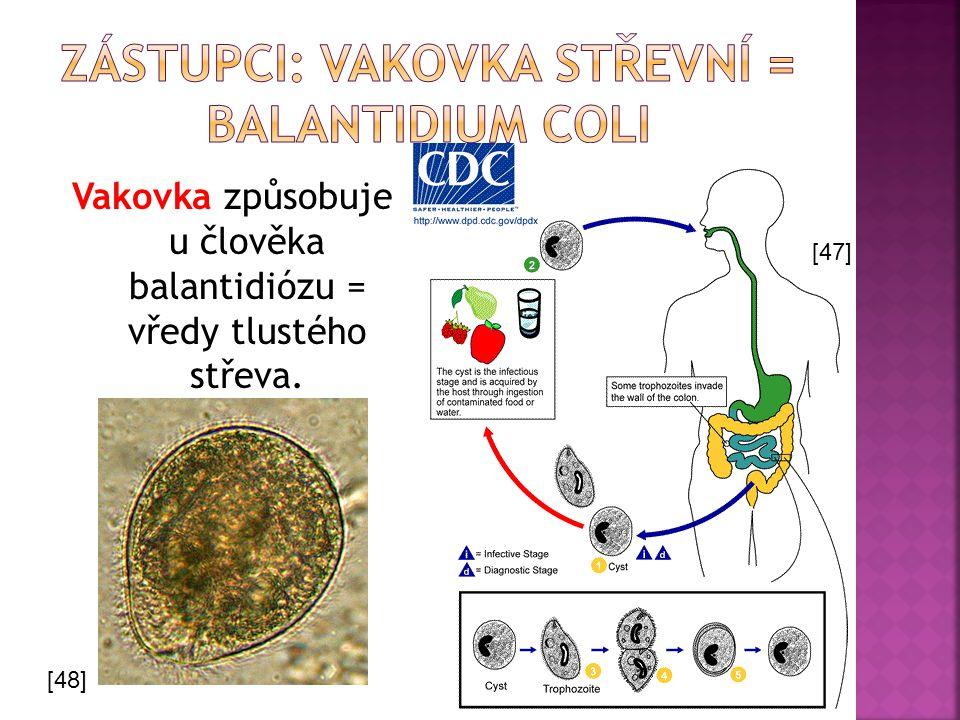 Zástupci: vakovka střevní = Balantidium coli