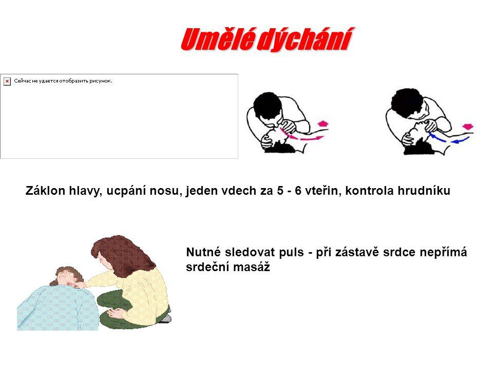 Umělé dýchání Záklon hlavy, ucpání nosu, jeden vdech za 5 - 6 vteřin, kontrola hrudníku.