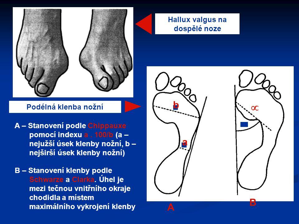 Hallux valgus na dospělé noze