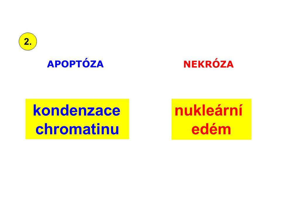 kondenzace chromatinu nukleární edém