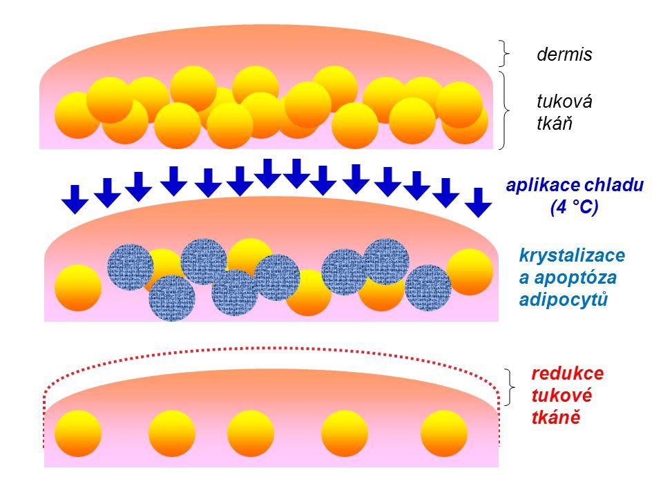 dermis tuková tkáň aplikace chladu (4 °C) krystalizace a apoptóza adipocytů redukce tukové tkáně