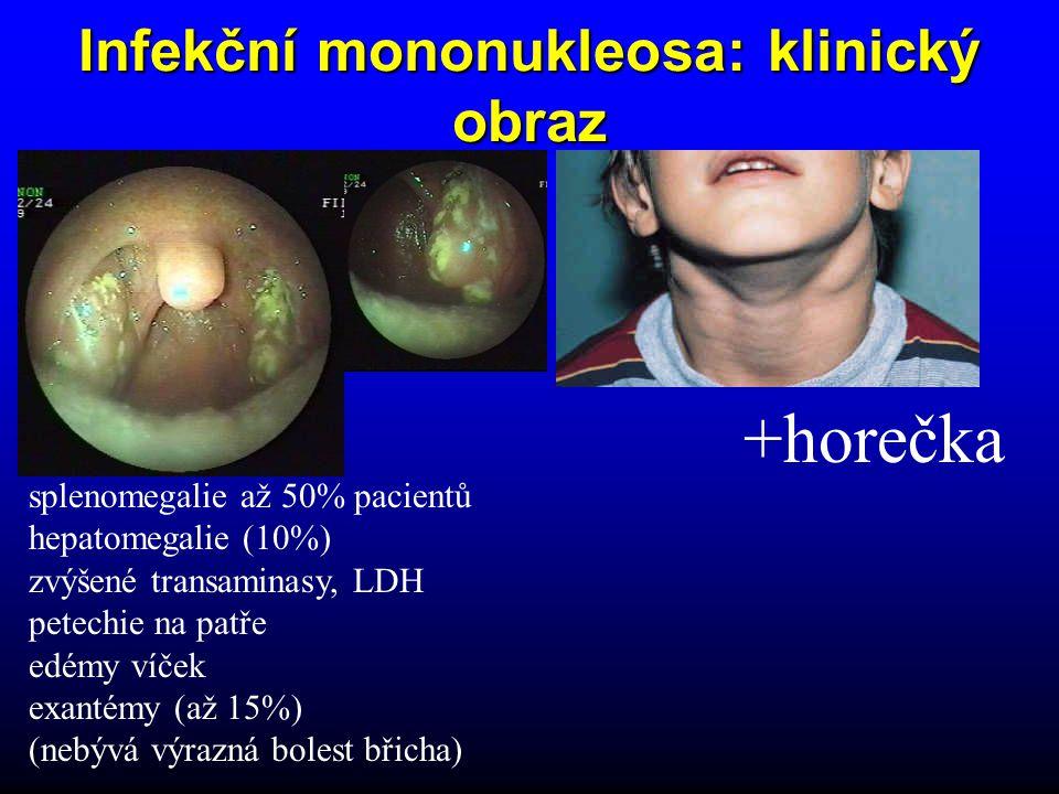 Infekční mononukleosa: klinický obraz