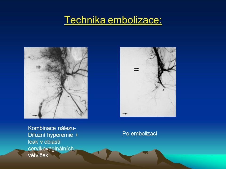 Technika embolizace: Kombinace nálezu-Difuzní hyperemie + leak v oblasti cervikovaginálních větviček.