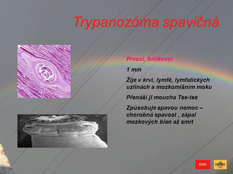 Trypanozóma spavičná Prvoci, bičíkovci 1 mm