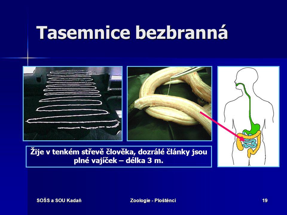 Tasemnice bezbranná Žije v tenkém střevě člověka, dozrálé články jsou plné vajíček – délka 3 m. SOŠS a SOU Kadaň.
