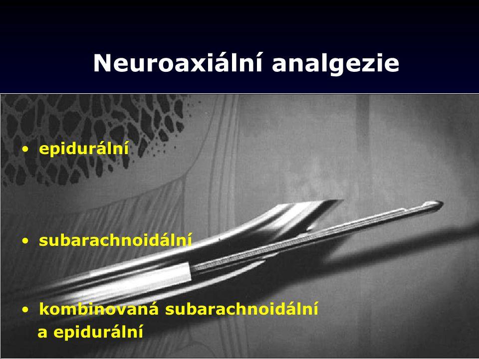 Neuroaxiální analgezie