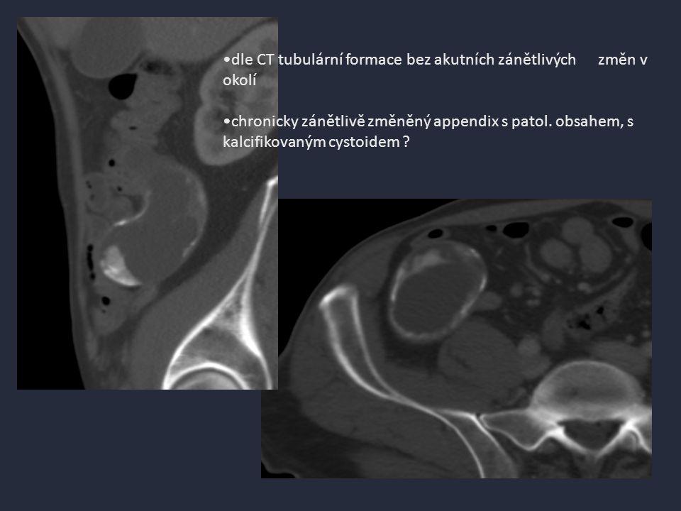 dle CT tubulární formace bez akutních zánětlivých změn v okolí