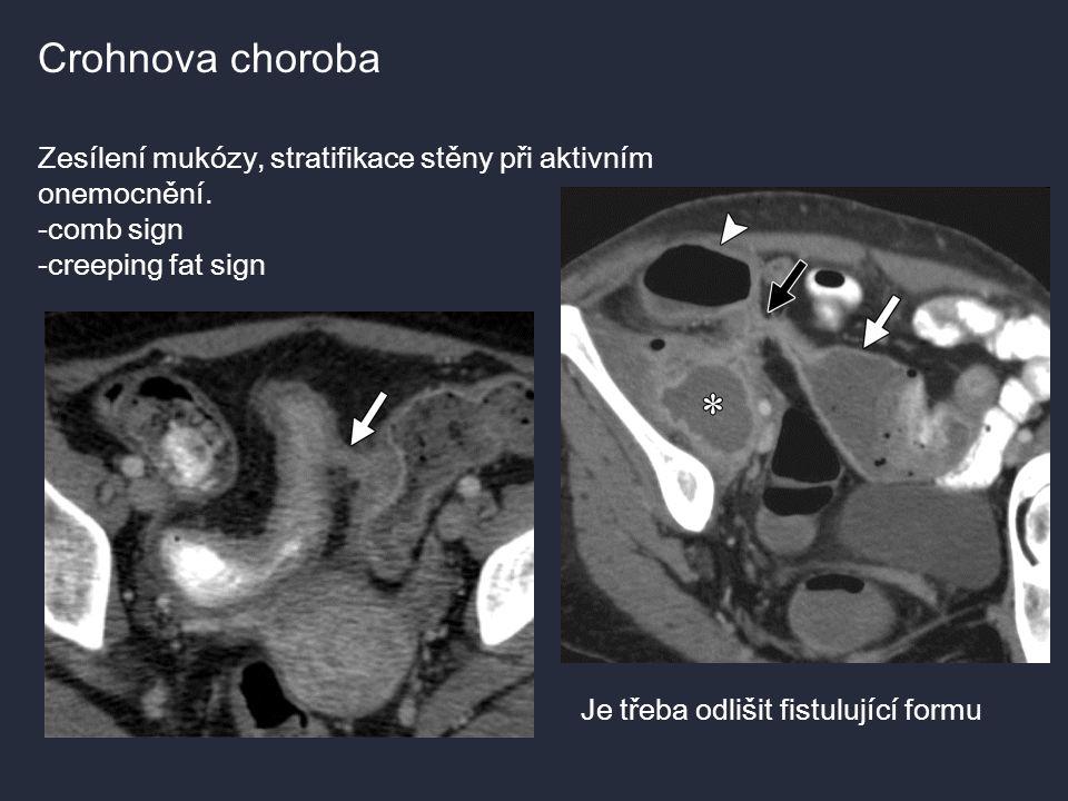 Crohnova choroba Zesílení mukózy, stratifikace stěny při aktivním onemocnění. -comb sign. -creeping fat sign.