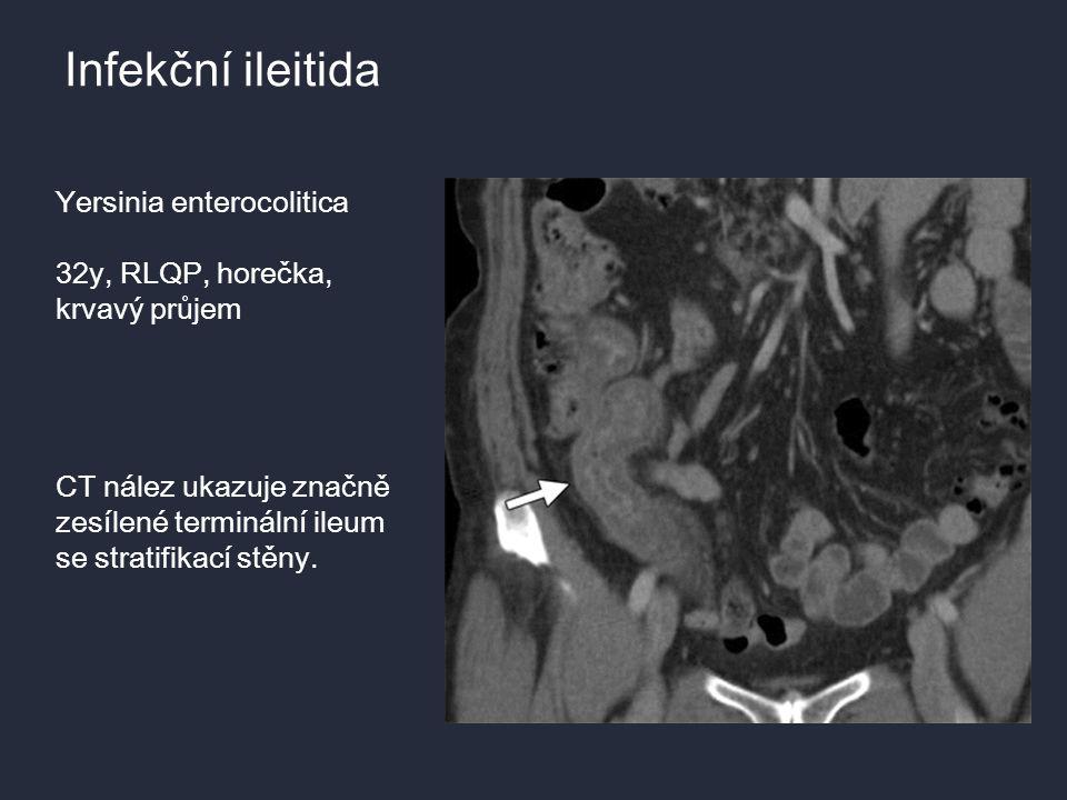 Infekční ileitida Yersinia enterocolitica 32y, RLQP, horečka,
