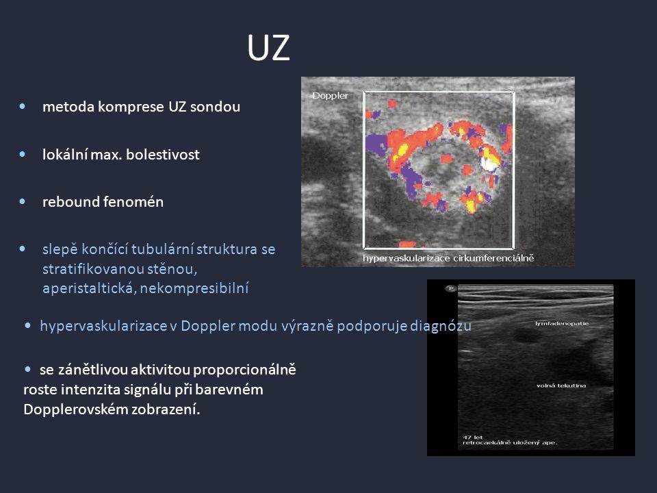 UZ metoda komprese UZ sondou lokální max. bolestivost rebound fenomén