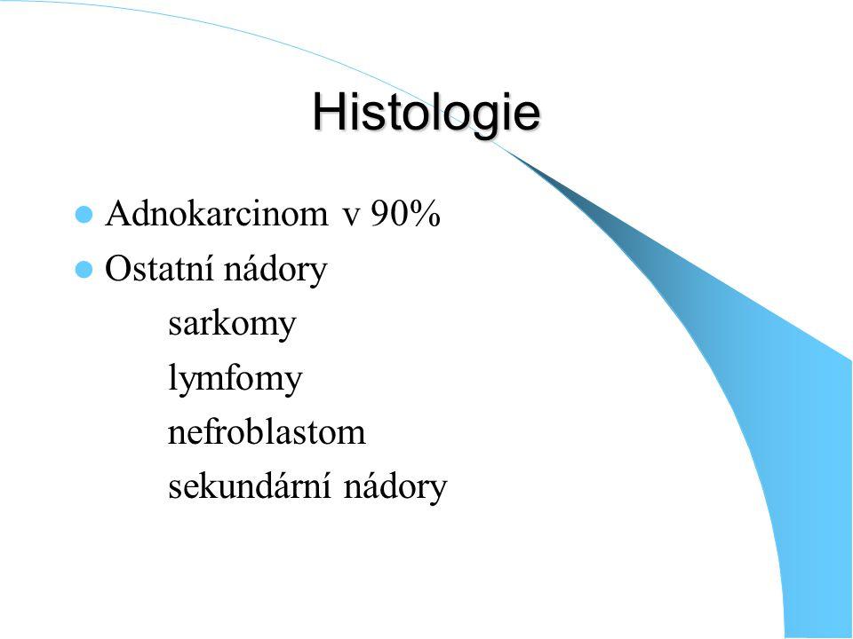 Histologie Adnokarcinom v 90% Ostatní nádory sarkomy lymfomy