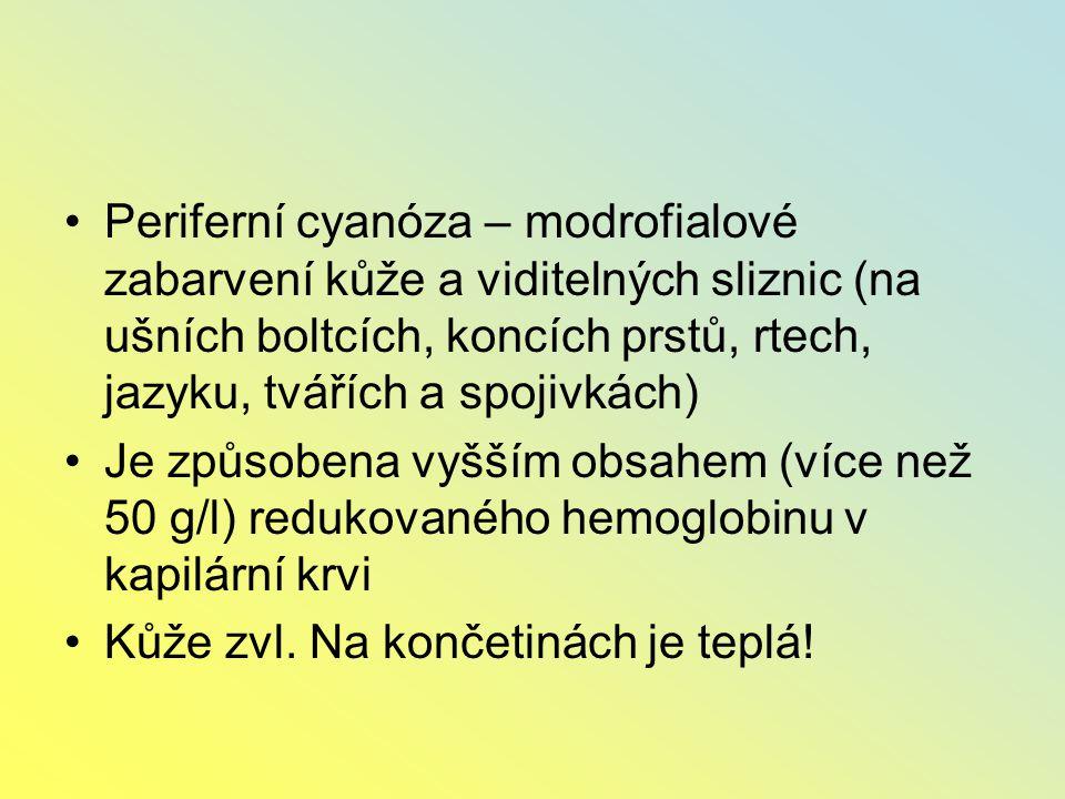 Periferní cyanóza – modrofialové zabarvení kůže a viditelných sliznic (na ušních boltcích, koncích prstů, rtech, jazyku, tvářích a spojivkách)