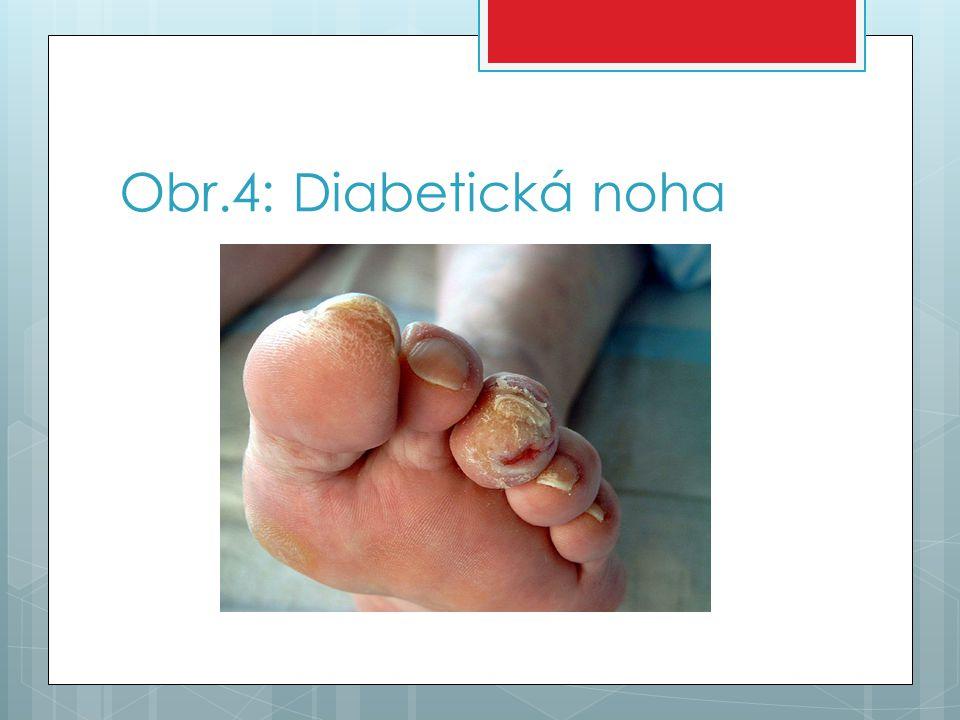 Obr.4: Diabetická noha