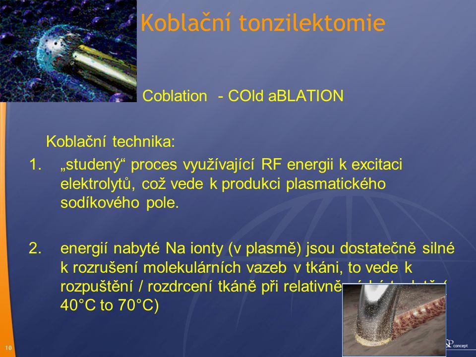 Koblační tonzilektomie
