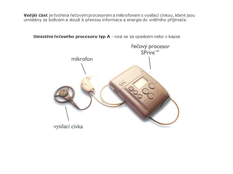 Vnější část je tvořena řečovým procesorem a mikrofonem s vysílací cívkou, které jsou umístěny za boltcem a slouží k přenosu informace a energie do vnitřního přijímače.