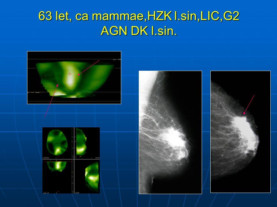 63 let, ca mammae,HZK l.sin,LIC,G2 AGN DK l.sin.