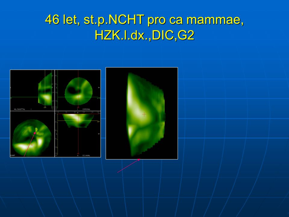 46 let, st.p.NCHT pro ca mammae, HZK.l.dx.,DIC,G2