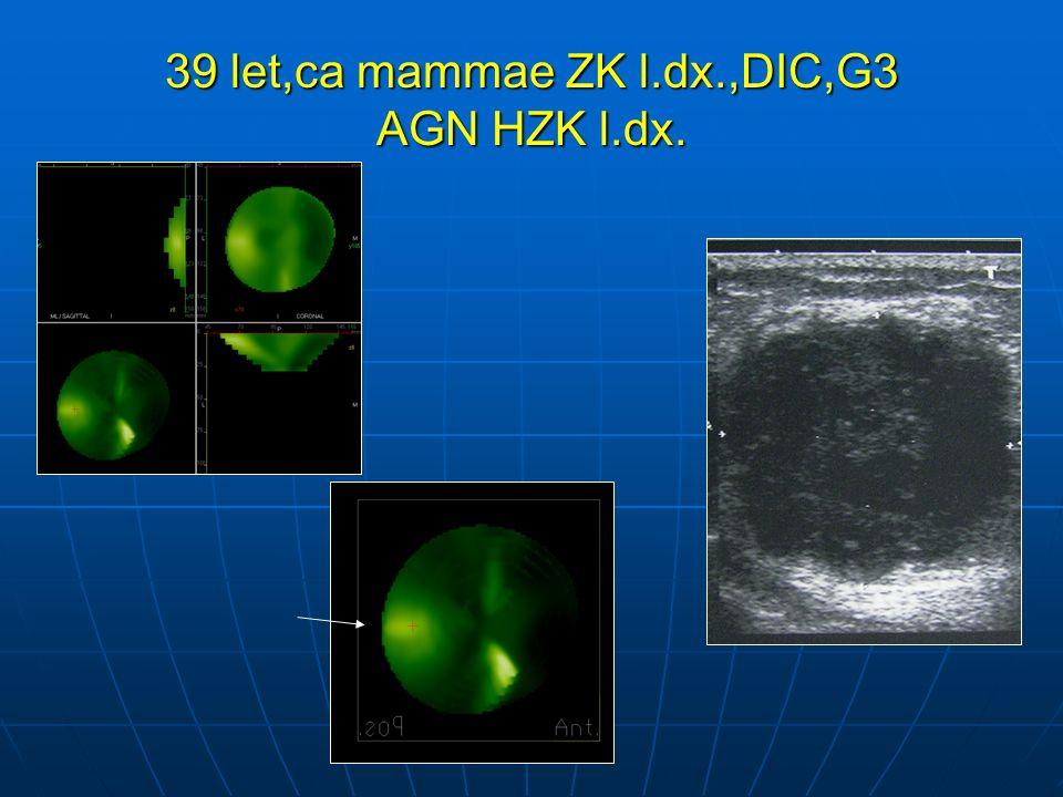 39 let,ca mammae ZK l.dx.,DIC,G3 AGN HZK l.dx.