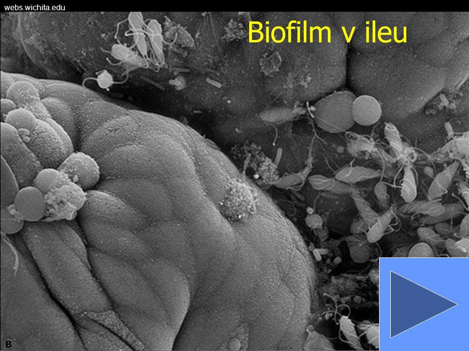 webs.wichita.edu Biofilm v ileu