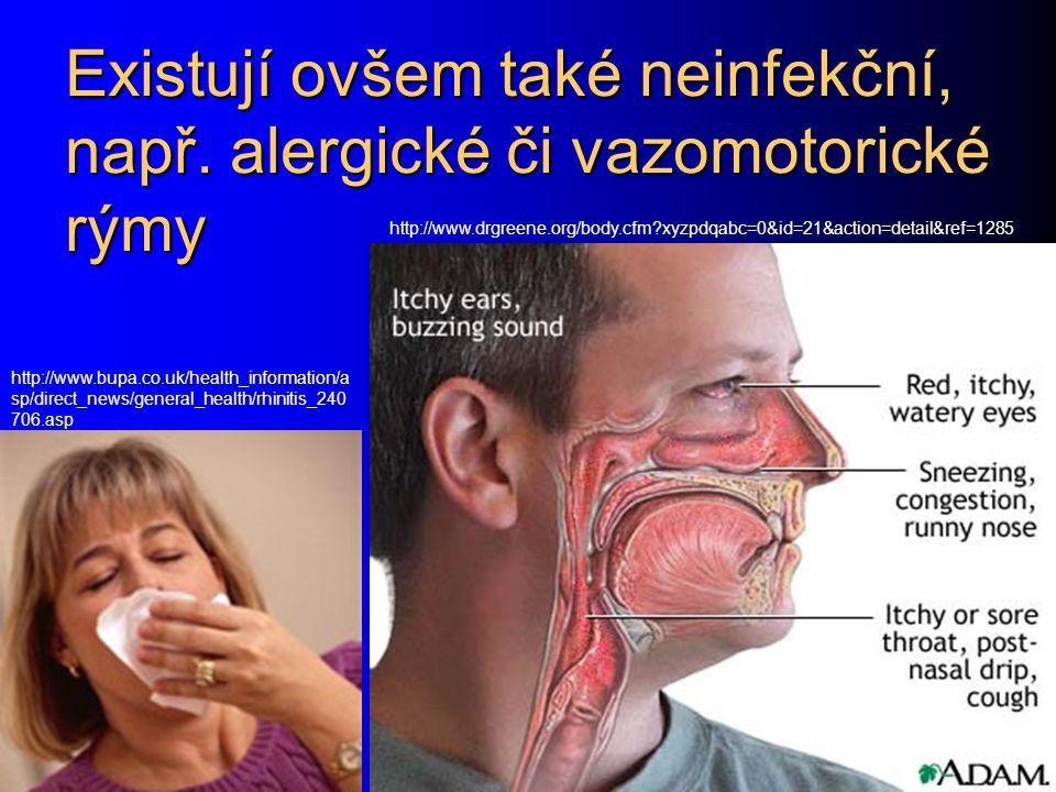 Existují ovšem také neinfekční, např. alergické či vazomotorické rýmy