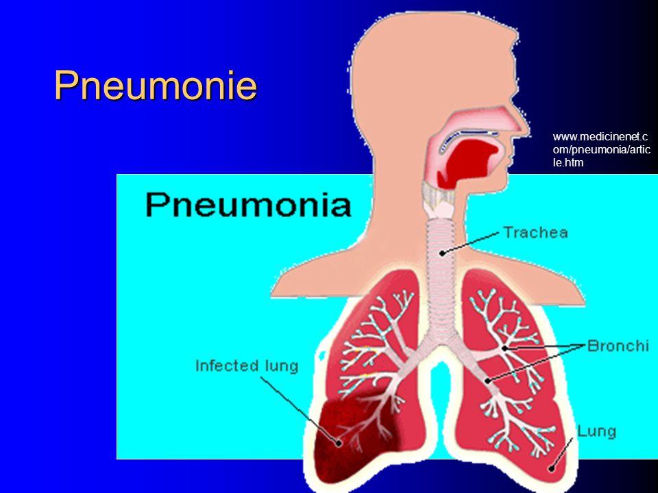 Pneumonie www.medicinenet.com/pneumonia/article.htm