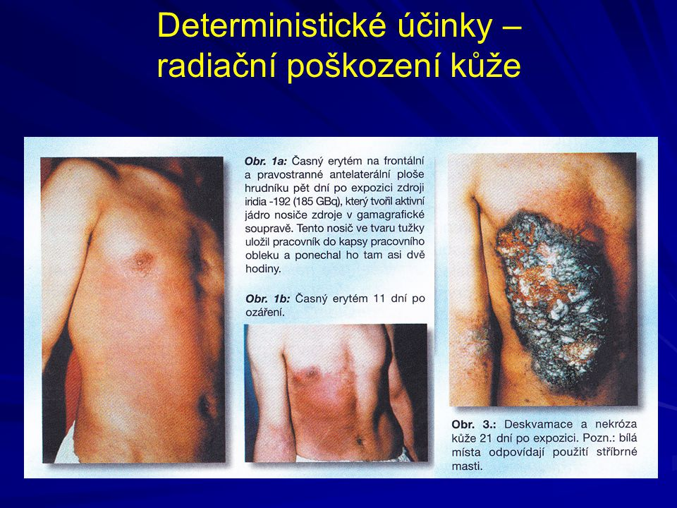 Deterministické účinky – radiační poškození kůže