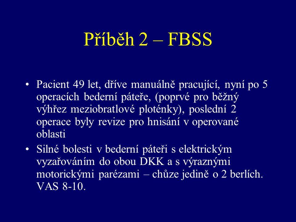 Příběh 2 – FBSS