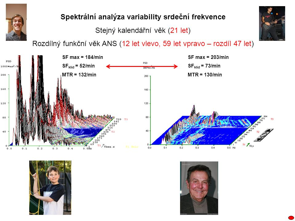 Spektrální analýza variability srdeční frekvence