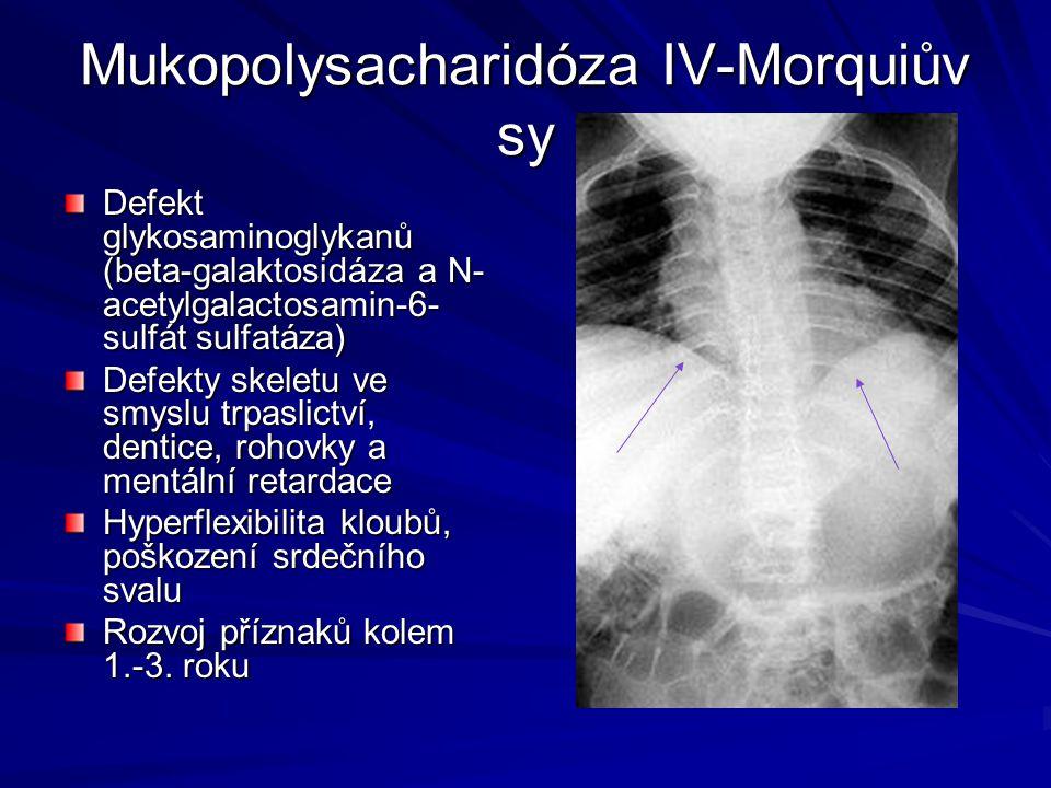 Mukopolysacharidóza IV-Morquiův sy