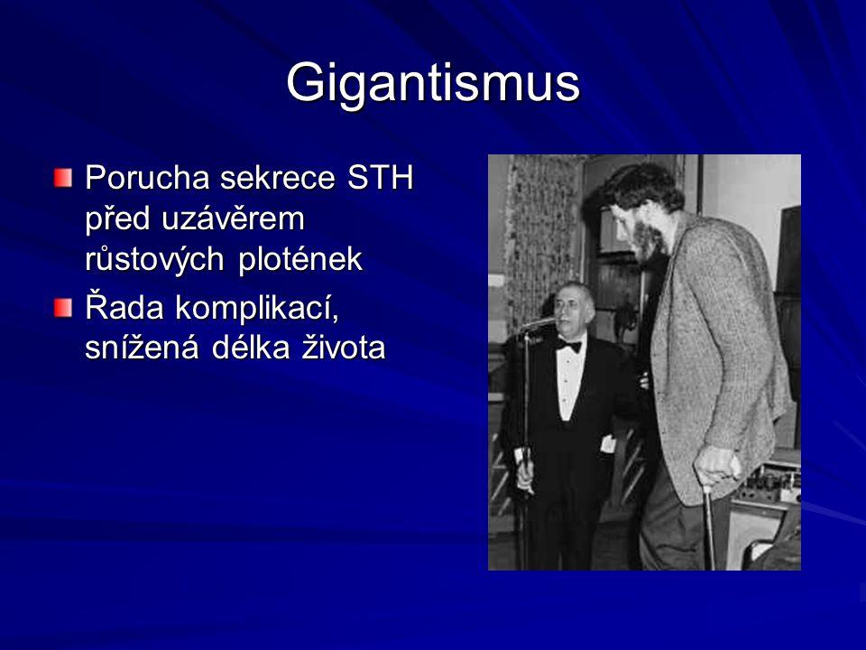Gigantismus Porucha sekrece STH před uzávěrem růstových plotének