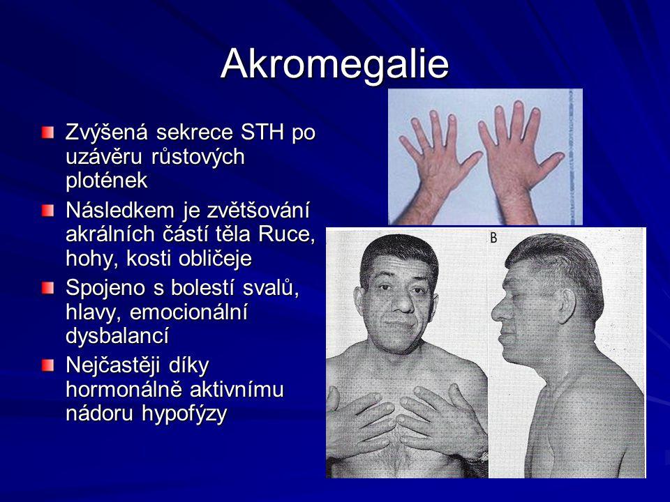 Akromegalie Zvýšená sekrece STH po uzávěru růstových plotének