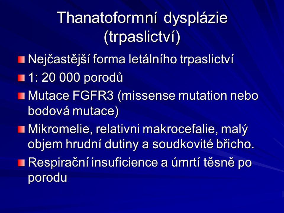 Thanatoformní dysplázie (trpaslictví)