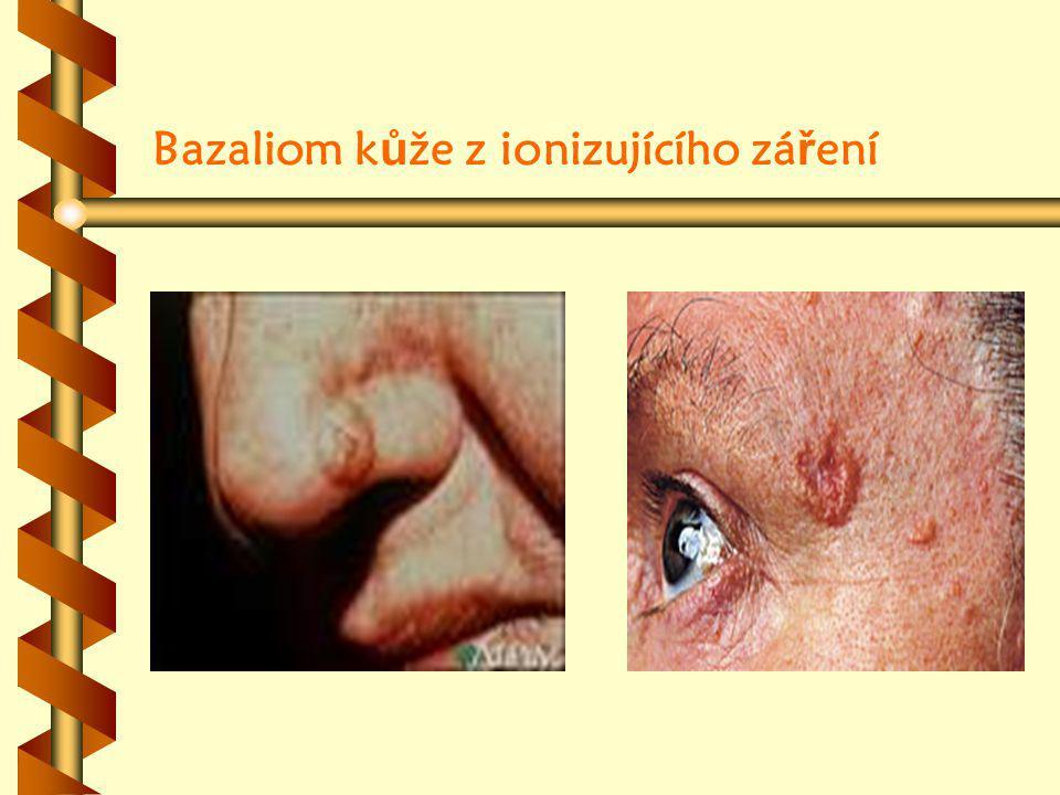 Bazaliom kůže z ionizujícího záření