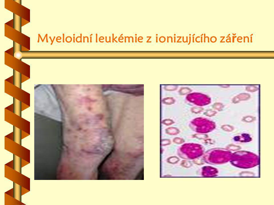 Myeloidní leukémie z ionizujícího záření