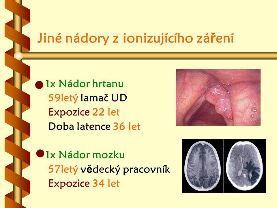 Jiné nádory z ionizujícího záření
