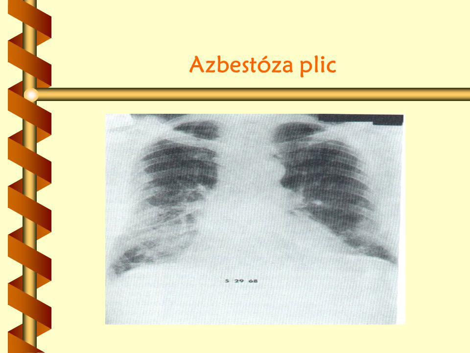 Azbestóza plic
