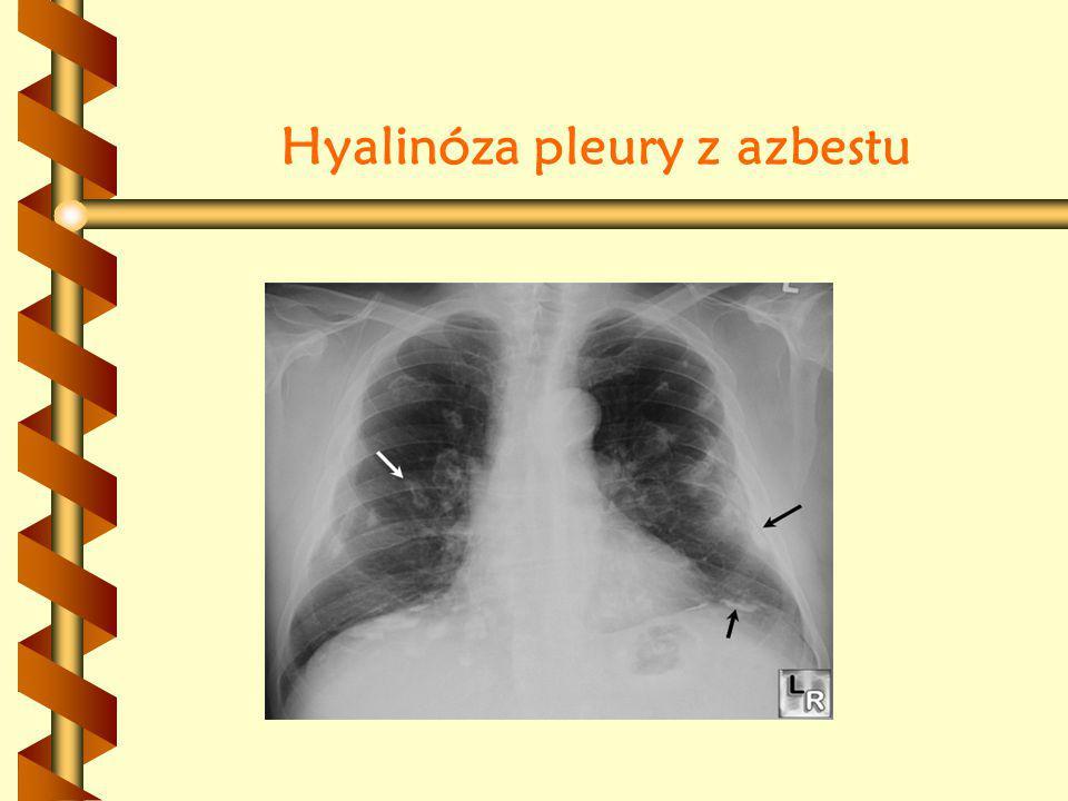 Hyalinóza pleury z azbestu